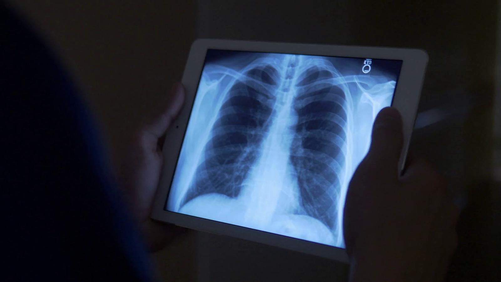 Akciğer hastalıklarına karşı solunabilir RNA molekülleri